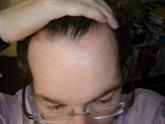 Scalp Psoriasis after