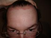 Scalp Psoriasis before