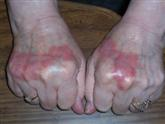 JoAnn hand psoriasis before