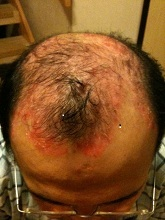 scalp psor before