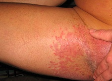 itchy anus steroid cream